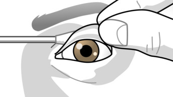 <font color=gray>Folding back the eyelid</font>